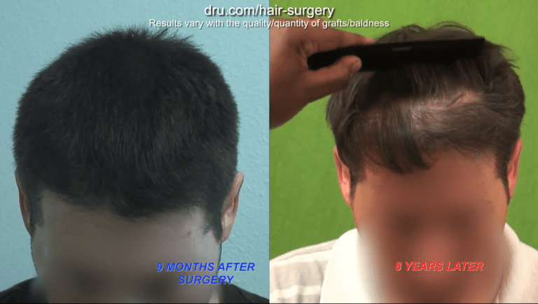 When you seek a hair transplant in your 20s, the natural progression of hair loss can be expected to manifest