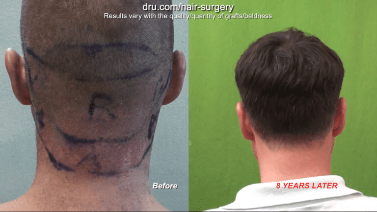 Getting a hair transplant in your 20s will most likely require future surgery in later years