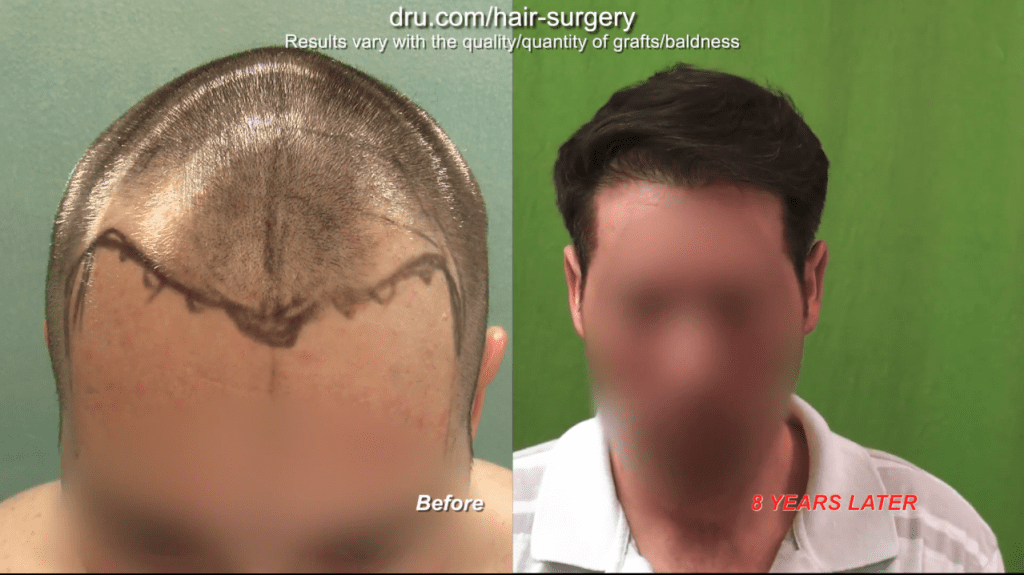 After receiving a hair transplant at a young age, another surgery is usually expected later on.