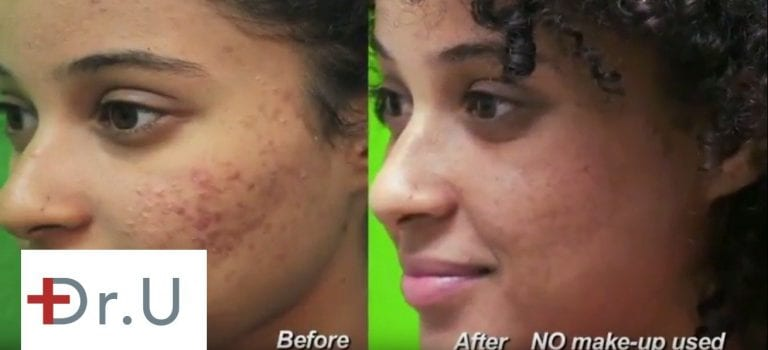 A laser acne scar treatment creates new collagen to improve the skin's texture
