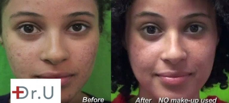 Ethnic patients can safely get rid of acne scars with Fraxel Dual