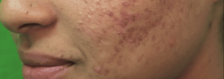 Patient who wants to improve acne scars on her face
