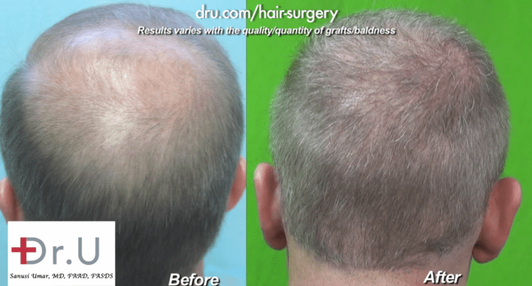 View of Crown for Norwood 6 before and after Dr.UGraft Surgery