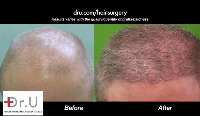Hairline restoration for Norwood 6 Before and After Dr.UGraft