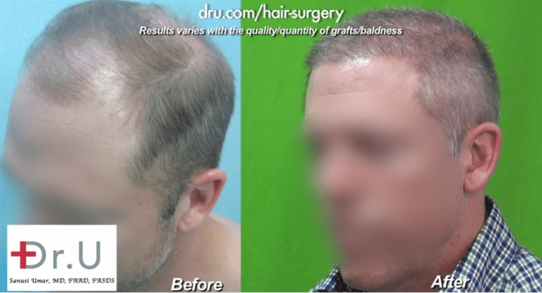 Three Quarters View of NW 6 Hair Transplant Using Dr.UGraft