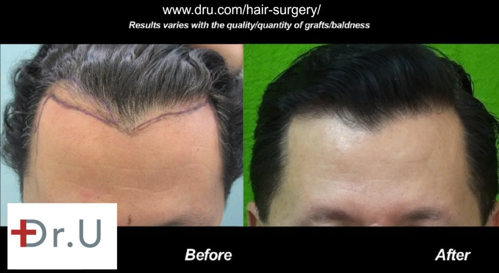 Hairline growth is healthy due to the successful survival of inserted grafts