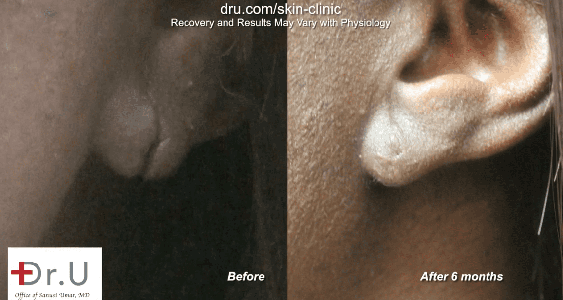Earlobe surgery before and after the procedure was done. The patient was pleased with her earlobe surgery*