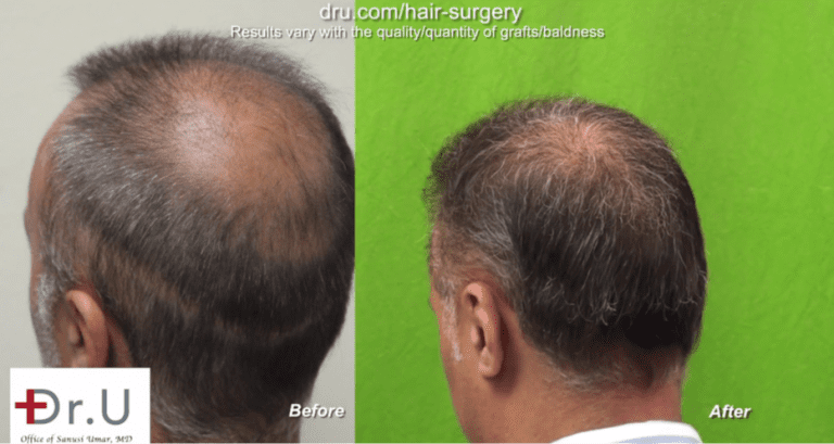 Side view of patient's results to cover strip scar linear wound using face hair to head transplant grafts
