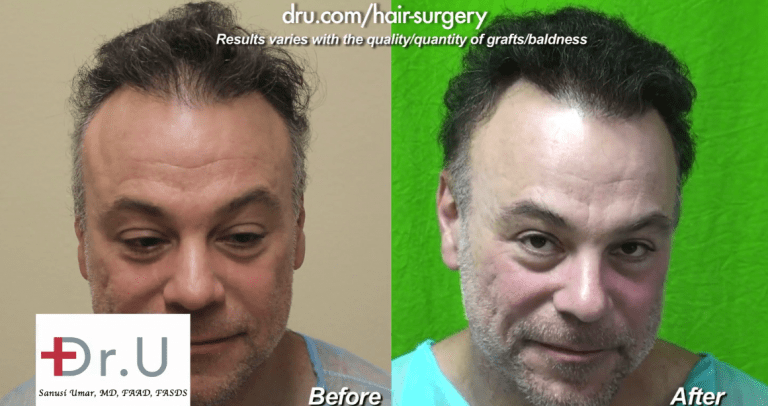 Skin thickness differences for FUE transplant also resides across body donor areas within the same individual. The Dr.UGraft Intuitive FUE technology addresses these differences, making it possible to extract grafts from regions like the face and nec. This patient's final results were created entirely from beard hair.