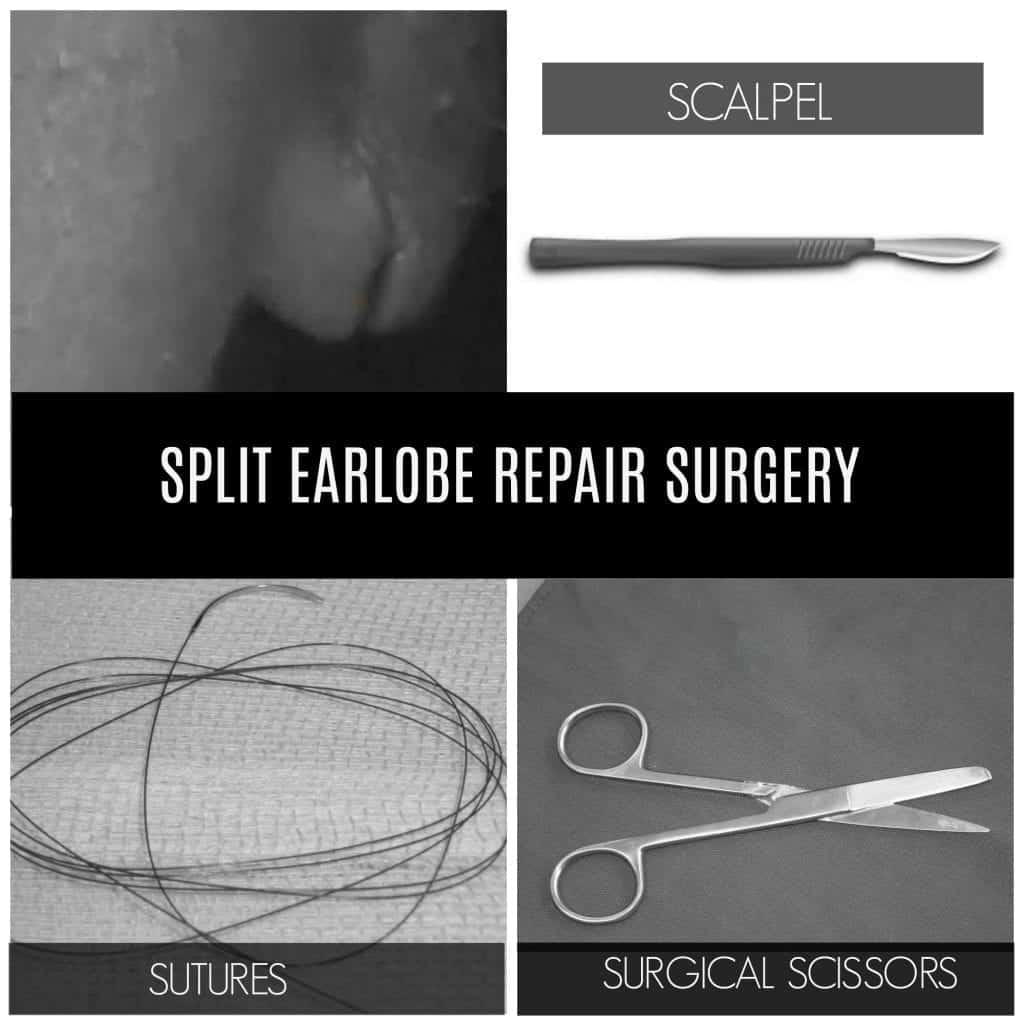 Pictured above is another patient example of a split earlobe prior to treatment, and the typical tools Dr. U uses in order to repair the earlobe.