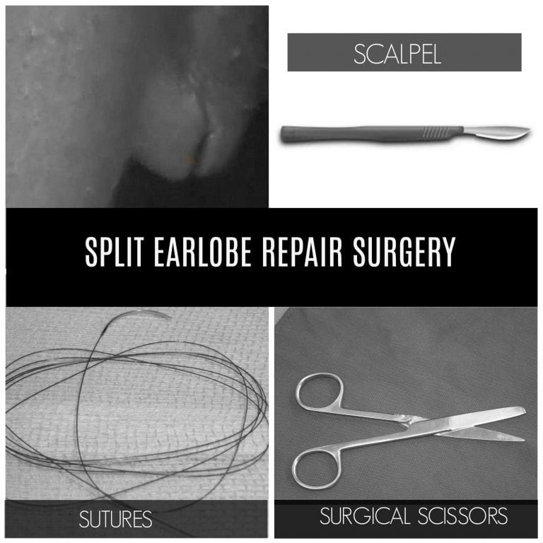 A torn earlobe surgery requires the use of simple tools to repair the split