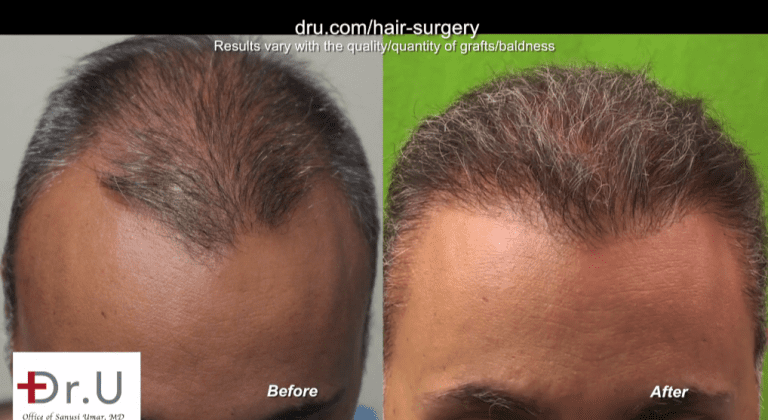 Results of hair surgery to reconstruct hairline and temples for past strip procedure mistakes. Patient shows excellent growth in both areas