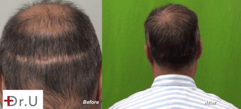 Results of theDr.UGraft™ hair repair to cover strip scar