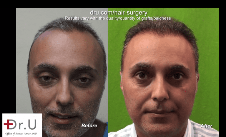 Front view of patient who underwent a face to head hair transplant with Dr. Umar for to fix his unsuccessful hair transplant from a previous strip surgery clinic
