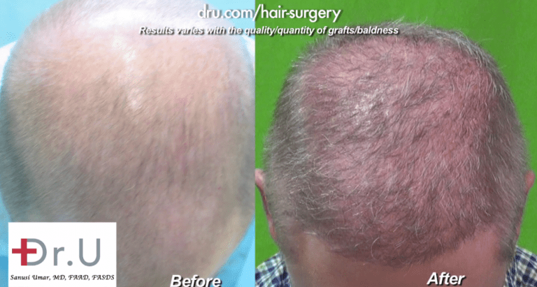 Top of patient's head before and after his Norwood 6 FUE using BHT*