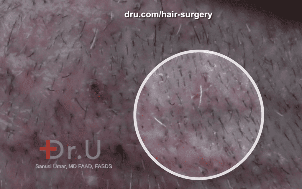 Hair transplant pimples are not unexpected after a hair restoration procedure. It is important to refrain from DIY treatments to get rid of acne after hair transplants. Instead, schedule a consultation with your physician.