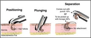 The Dr.UPunch Curl can follow the curvature of the hair follicles that are found in black patients.