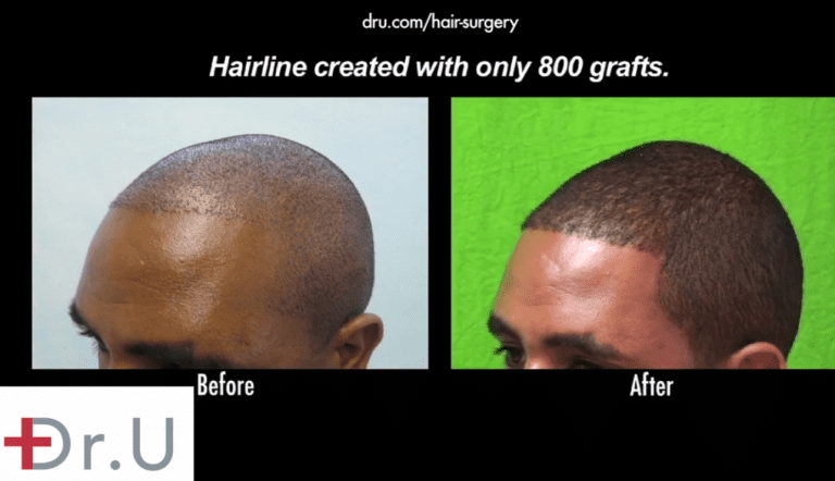 Receding hairlines in black men can be reversed using grafts that are successfully harvested using specialized extraction tools like the Dr.UPunch Curl ™ *