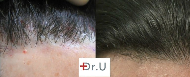 Patient's hairline reconstruction using leg hair produced more natural looking hairline restoration results, as shown in these before and after photos