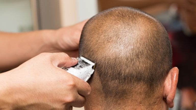 Have you noticed bumps on your head after a shave? While it may be tempting to brush off these bumps as just a barber's rash, they could be symptoms of a skin condition known as AKN.