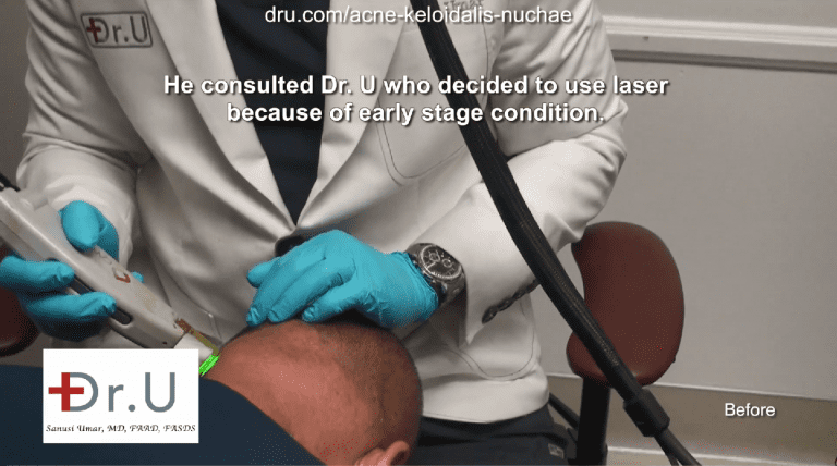 Dr. Umar treats this patient's itchy bumps on the head with laser therapy, since the condition was caught early on.