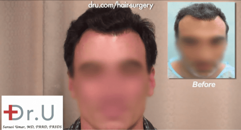 Palos Verdes, Los Angeles patient before and after his asymmetrical hairline repair
