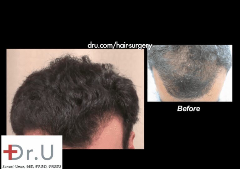 Dr. Umar's hairline repair with FUE also included addressing other areas like the sparse top shown here
