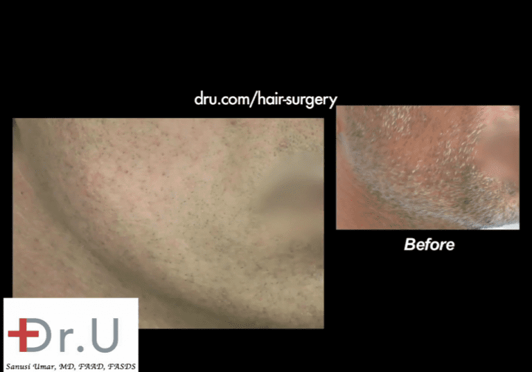 Patient's beard donor area shows amazing healing results