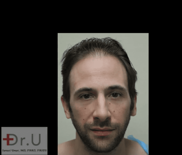 Celebrity hair restoration patient showing a receded hairline and temples before his procedure with Dr. Umar