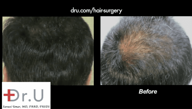 Beard hair grafts were inserted into the patient's sparse crown to produce the abundant density shown here