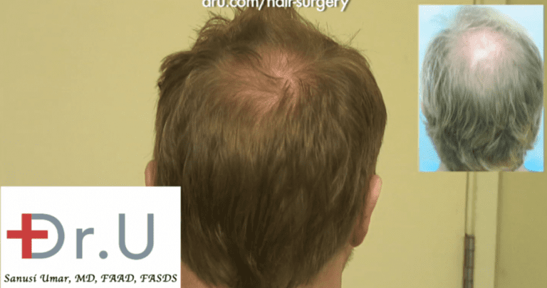 crown hair loss reversed along with treatment for advanced hairline recession