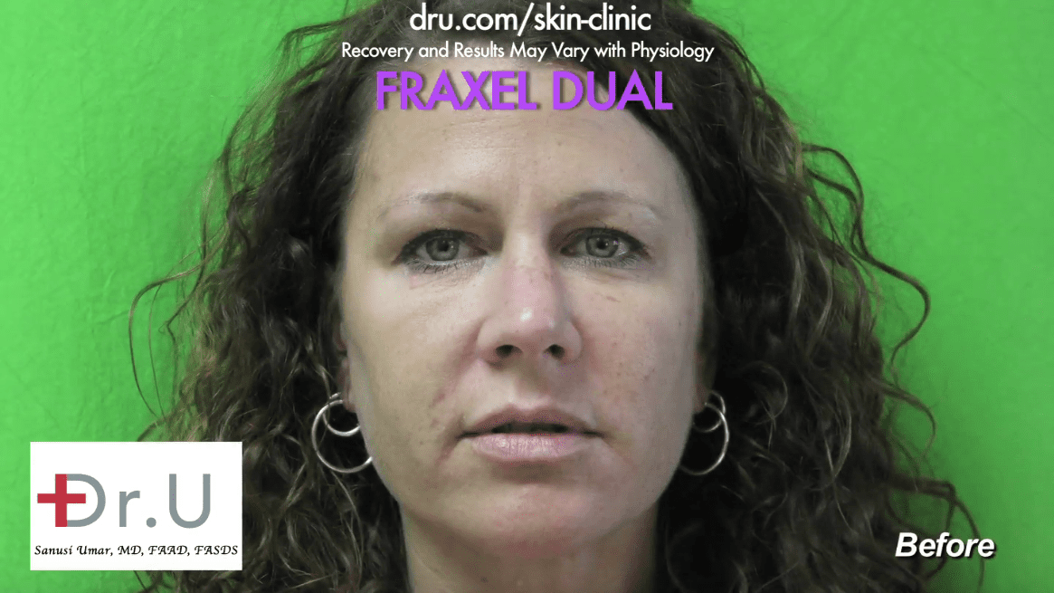 With Fraxel Dual laser, it is possible to get rid of brown spots caused by sun and aging.*
