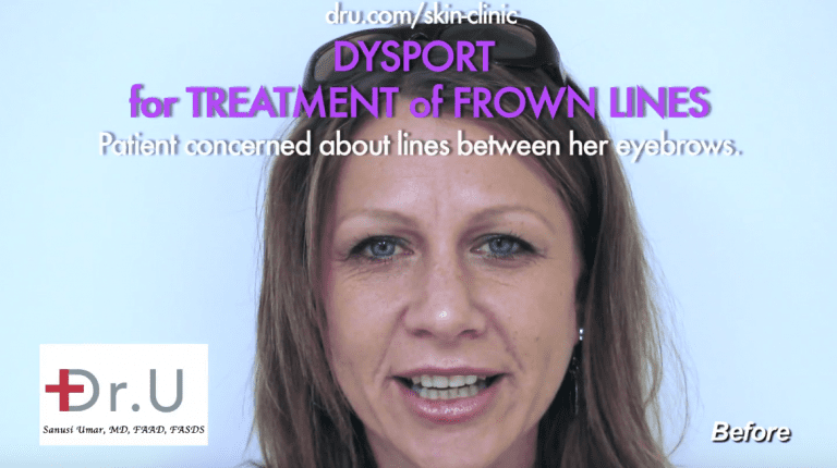 Get rid of furrow lines between eyebrows with Dysport at Dr. U Hair & Skin Clinic.*
