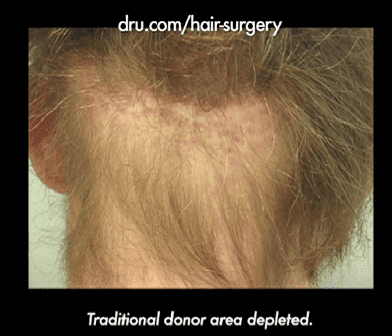 This patient's experience of hair transplant surgery gone wrong multiple times left him with his traditional donor area depleted