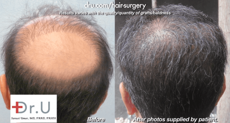 Body Hair Transplant To Fill In Bald Crown - Before and After