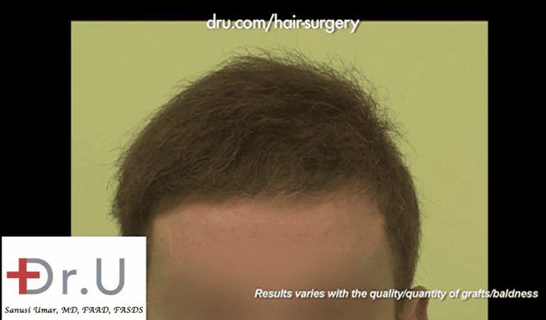 Patient's new hairline now lets him put his hair transplant disasters behind him