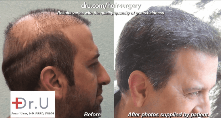 Side view of no hair growth yield compared to final body hair transplant outcome