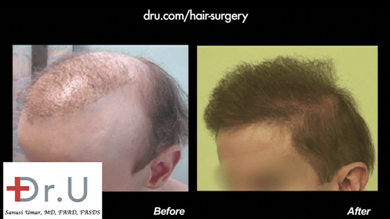 Patient is now able to put the signs of failed hair restoration behind him with his amazing new coverage which includes well-designed temples that frame his face in the best way possible