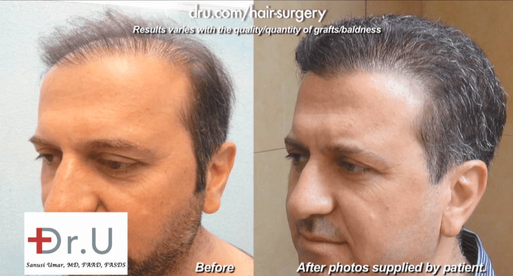 before and after surgery with Dr. U to repair a botched hair transplant outcome