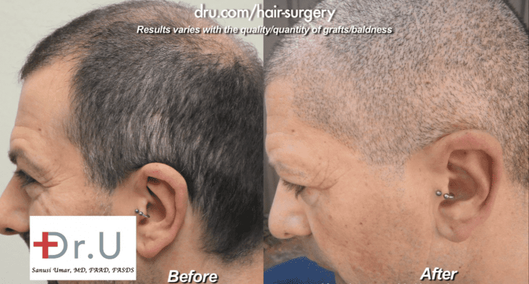 Beard and head hair grafts were used to conceal strip scars. Here are before and after photos