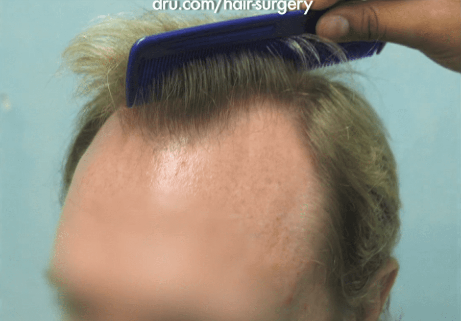 Treatment for Advanced Hairline Recession