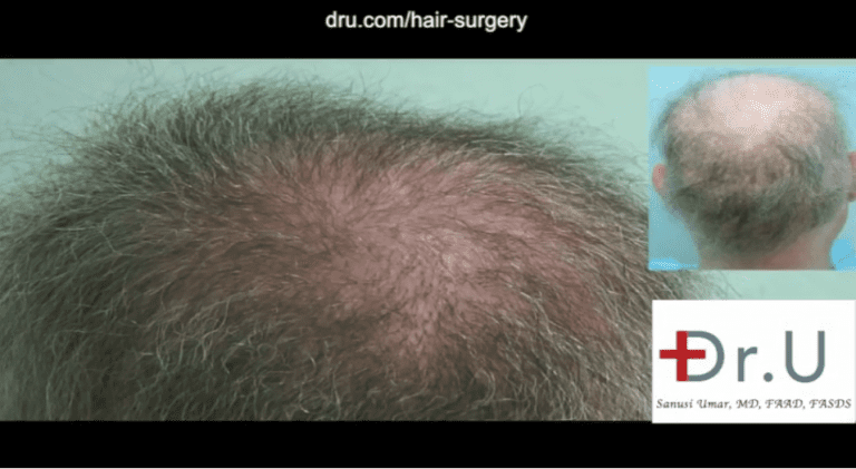 Body hair grafts were used to repair punch graft hair restoration scars and fill in the areas of failed growth from previous surgeries.