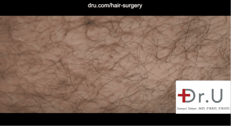 This patient's hair restoration with 10,000 grafts included graft taken from the abdomen. In this photo, a close-up view is shown six months after his surgery. This donor area shows no obvious signs of surgical extractions