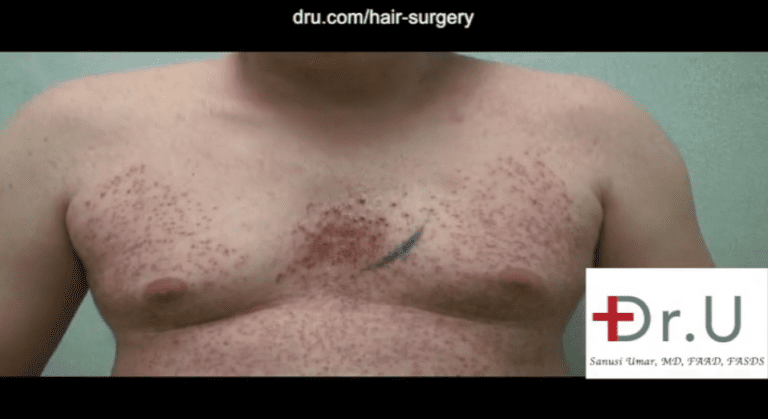 Patient on the last day of his body hair transplant surgery showing his chest after donor grafts were harvested