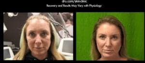 Botox and Dysport can be used for facial wrinkles and eyebrow lifts by relaxing specific muscles