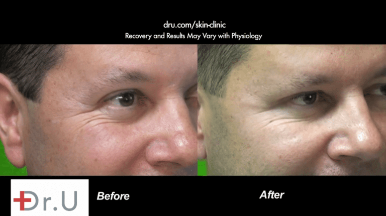 When Botox or Dysport results don't last, patients are encouraged to observe how their body reacts to the other botulinum toxin drug