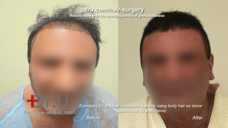 One way to circumvent the relation between testosterone and hair loss is through hair transplant. This patient received a 9,000 graft hair transplant, mostly using body and beard hair.*
