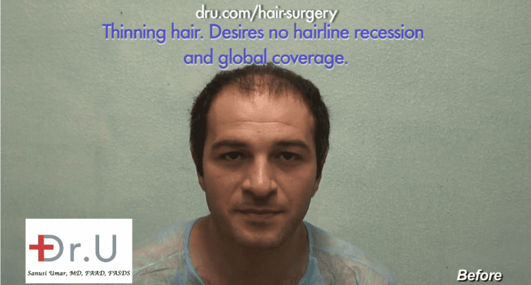 patient with diffuse hair loss before his 10,000 grafts hair transplant with Dr.UGraft