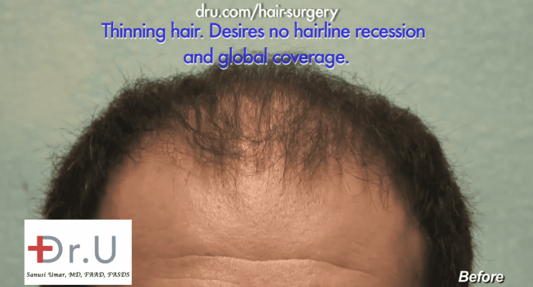 Beverly Hills patient hopes to achieve a low hairline to overcome recession