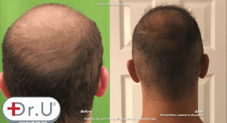 Patient was able to fill in his crown as a result of his Dr.UGraft early 20's hair transplant